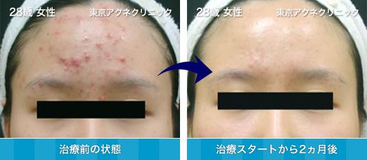 28歳 女性のニキビ治療 症例写真