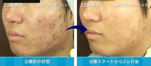 23歳 男性のニキビ治療 症例写真